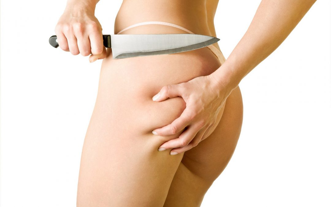 How To FINALLY Get Rid of Cellulite (4 Proven Methods)